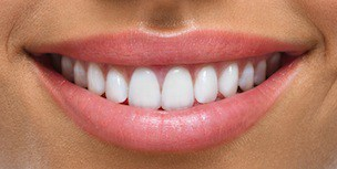 smile-design